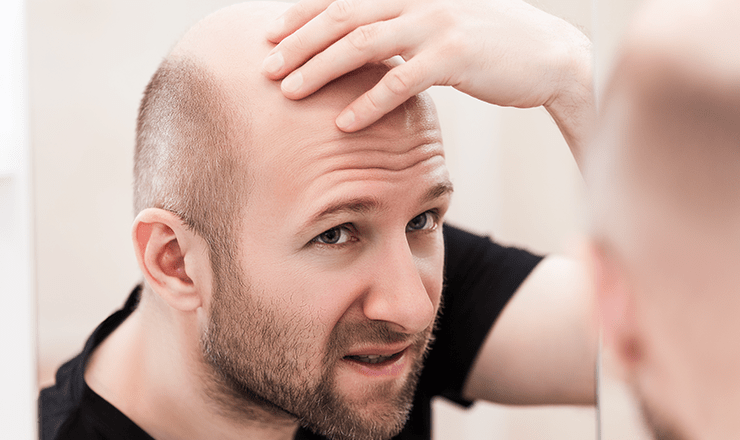 sgk bağkur saç ekimini karşılar mı 2021?